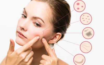 How to get rid of Acne Scars for a Clear Skin in 8 easy ways