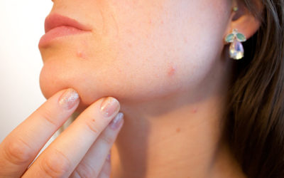 5 Powerful Home Remedies For Acne